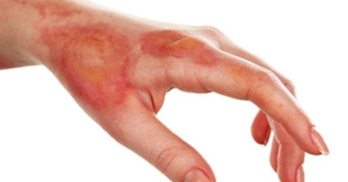 Comment cicatriser une brulure