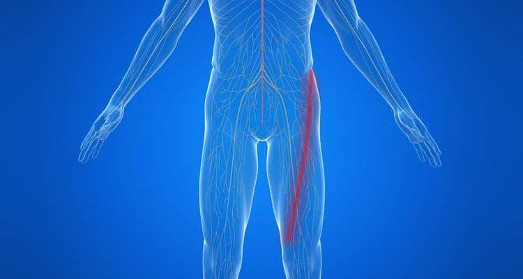 Comment soigner le nerf crural